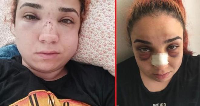 Karşıyaka'da genç kadın patronundan dayak yedi