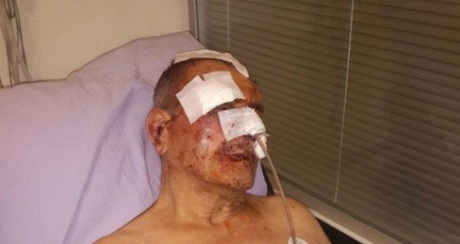 Karşıyaka'da apartman aidatını isteyen yönetici hastanelik oldu